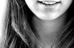 Wisdom Teeth   Pediatric Dentist San Diego   ABC Dentistry 2