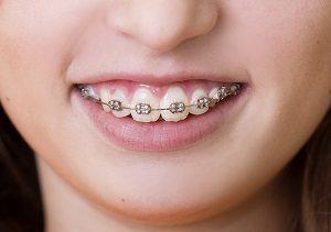 Choosing color for braces