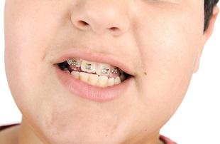 misalignment, teeth