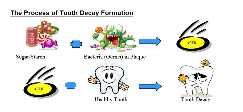 Tooth decay in children - info