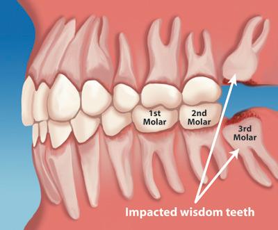 Wisdom Teeth Removal - impacted teeth